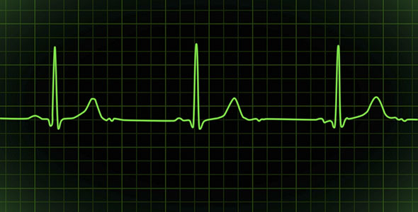 VideoHive Heartbeat Monitor EKG Cardiogram Loopable 2904647